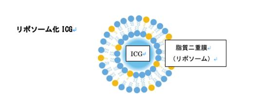 リポソーム化 ICG