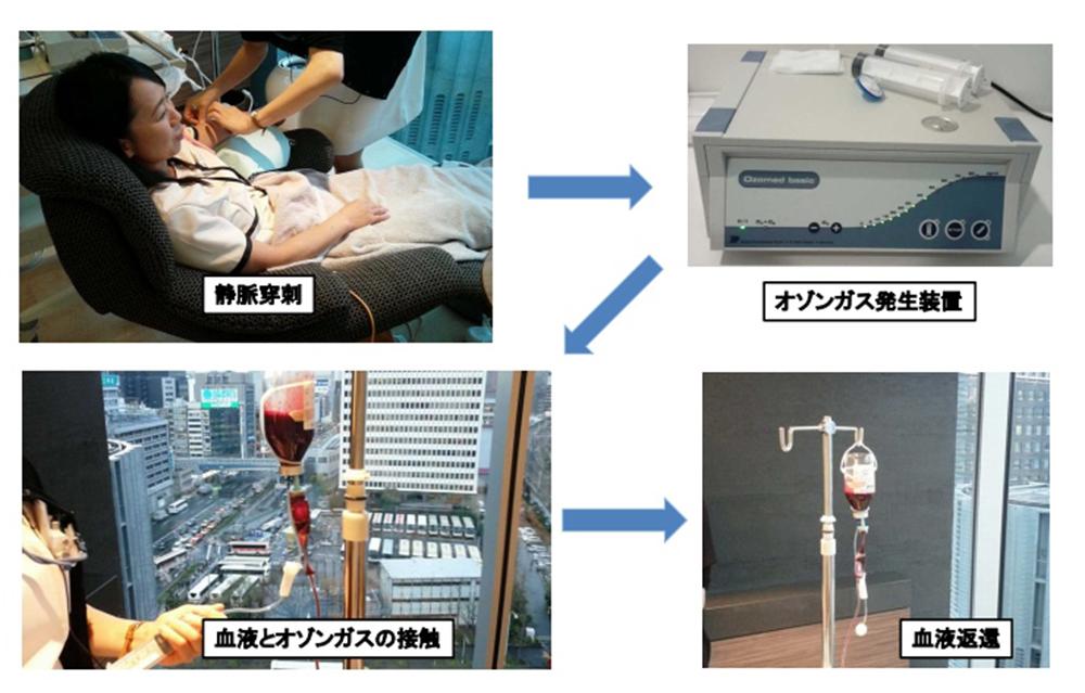 オゾン療法の流れ