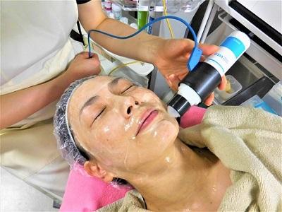 痛みを伴わないメソアクティスの美容治療